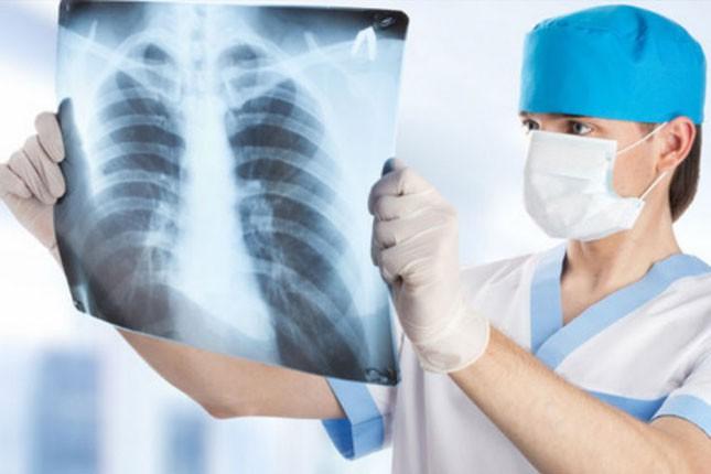 Sutra se obeležava Svetski dan borbe protiv tuberkuloze