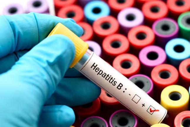 Besplatno testiranje na hepatitis u četvrtak
