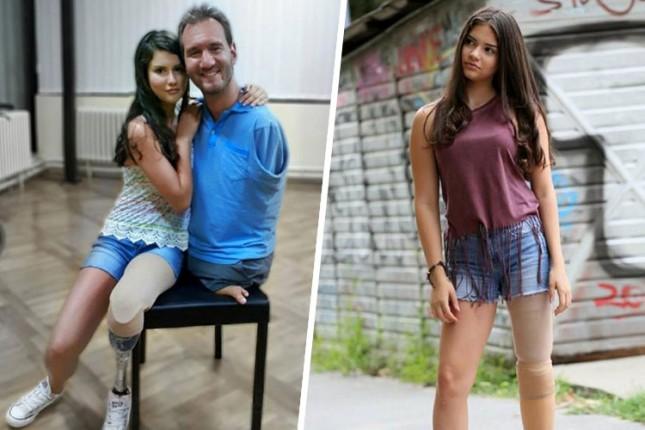 Trinaestogodišnja Biljana je izgubila nogu zbog raka, ali danas se još više raduje životu